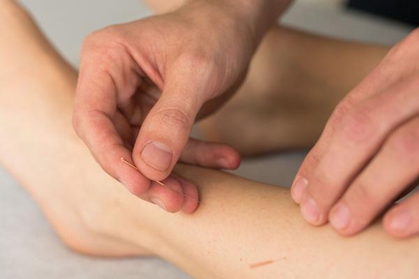 Leistungen Akupunktur